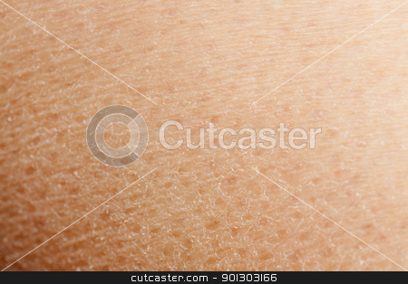 Dry Skin stock photo, A macro detail background of dry skin by Tyler Olson