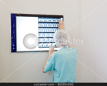 Doctor examining an X-Ray image stock photo, Female doctor examining an X-Ray image of patient by Tyler Olson