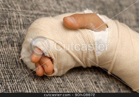Broken arm stock photo, broken arm bone in a cast and bandages over gray background by Julija Sapic