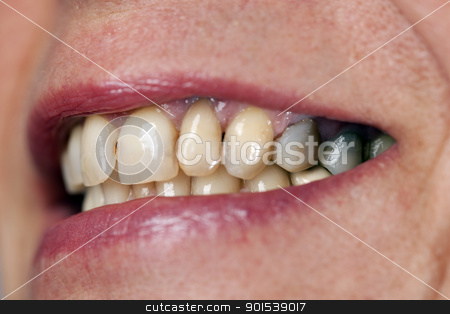 tooth stock photo, a macto of the tooth of a women by Rob Bouwman