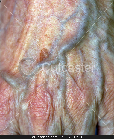 vein stock photo, a vein on an older hand by Rob Bouwman