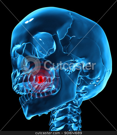 Toothache illustration stock photo, Toothache medical illustration by Mopic