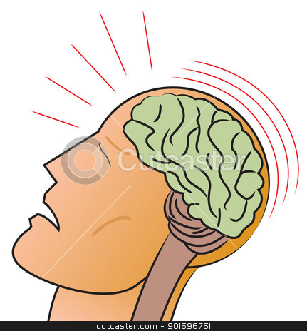 Concussion stock vector clipart, A stylized depiction of a man receiving a traumatic head injury or concussion. by Jamie Slavy