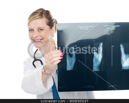 Female surgeon holding x-ray report stock photo, Female surgeon holding x-ray report of a patient and showing it to camera by Ishay Botbol   