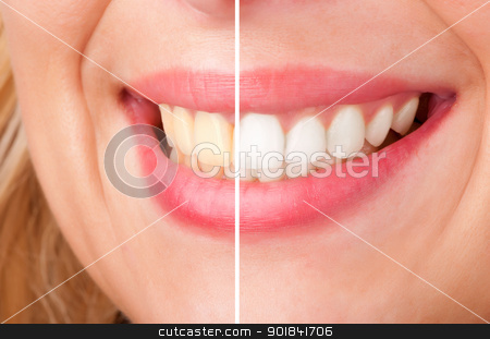 Dental Whitening stock photo, Before and after of a dental whitening procedure by ruigsantos