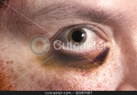 Black Eye stock photo, Woman with a black and blue swollen and injured eye by Robert Byron