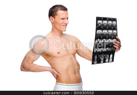 Backache stock photo, Full isolated studio picture from a young naked man with backache by Picturehunter