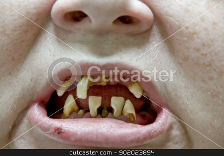 Tooth Decay stock photo, Woman with severe dental oral tooth decay by Robert Byron