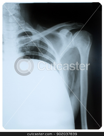 X-ray image of shoulder joint. stock photo, X-ray image of shoulder joint. by Oleksiy Fedorov
