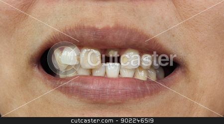 Closeup of bad teeth stock photo, Bad teeth during treat to wait for fasten dentures by Suphatthra China