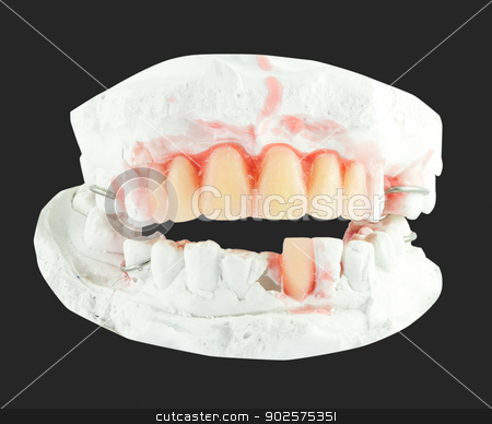 upper and lower plaster denture  stock photo, upper and lower plaster denture  by Bunwit