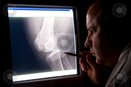 Doctor X-ray stock photo, A radiologist looking at a patients x-ray. by Robert Byron