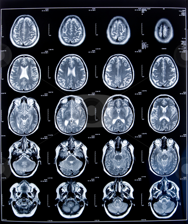 Health medical mri stock photo, Health medical image of an mri of the head showing the brain by Ivan Montero