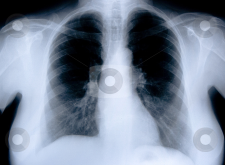 Health medical x ray stock photo, Health medical image of an x ray of the chest by Ivan Montero