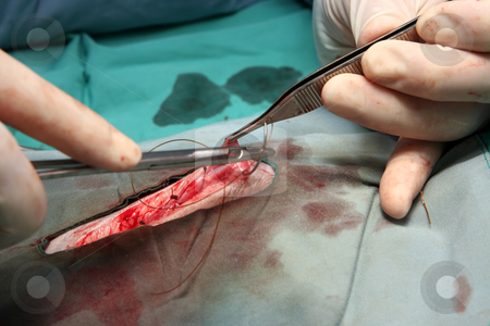 Stitching - medical stock photos stock photo, A surgeon is closing a wound by stitching - medical stock photos by Paul Hakimata