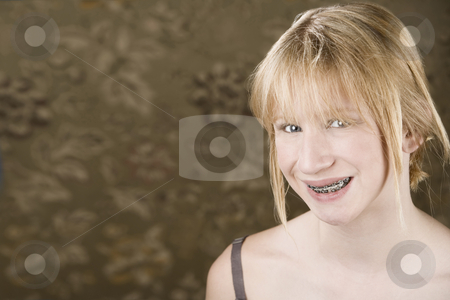 Pretty young girl with with braces stock photo, Portrait of pretty teenage girl with braces by Scott Griessel