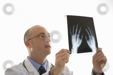 Doctor looking at xrays. stock photo, Caucasian mid adult male physician holding up hand xrays. by Iofoto Images