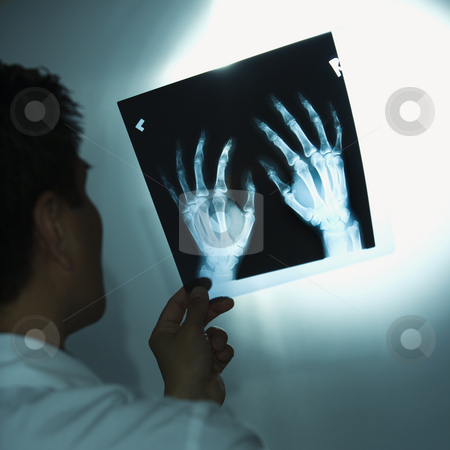 Doctor examining x-rays. stock photo, Asian American male doctor examining x-rays. by Iofoto Images