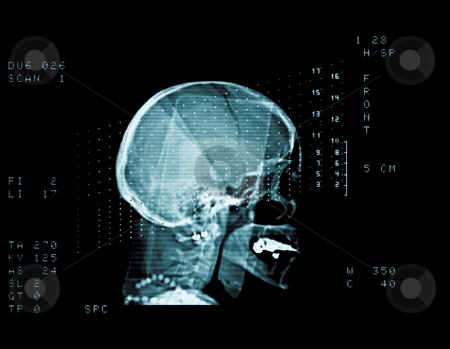 Skull cat scan stock photo, Cat scan of a middle aged woman head by Laurent Dambies