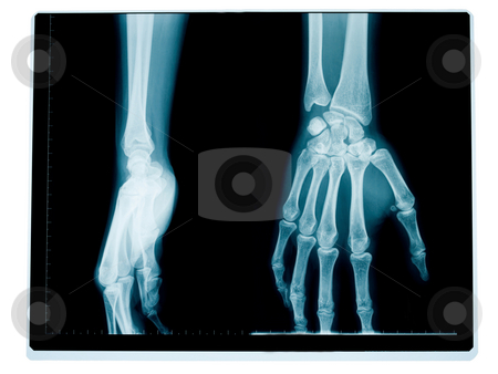 Hand and wrist radiography stock photo, X-ray of the front and side of a hand and wrist of a middle aged woman by Laurent Dambies