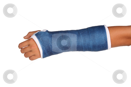 Blue cast on hand stock photo, Blue cast on an arm of a child isolated on white background by Stacy Barnett