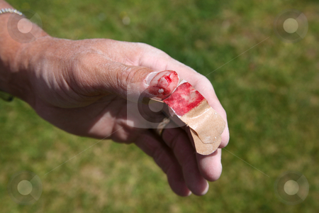 Cut thumb stock photo, Construction worker with dusty hand and injured bloody thumb by Stacy Barnett
