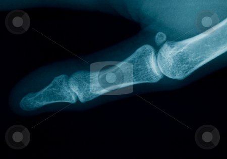 Finger  x-ray stock photo, Radiography of a middle aged woman finger by Laurent Dambies