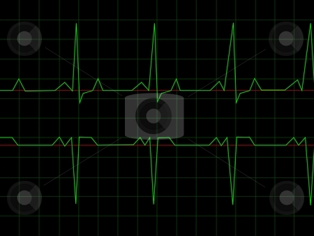 Normal Heart Rhythm stock photo, Normal Heart Rhythm electrocardiogram ECG graph with black background by Henrik Lehnerer