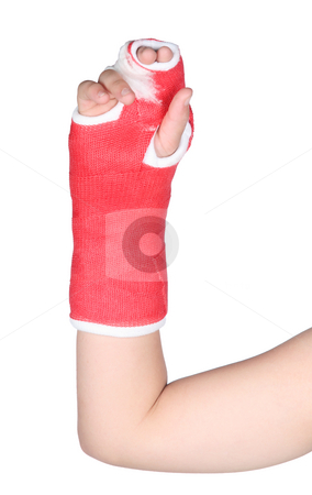 Red cast on girl stock photo, Red cast on a child isolated on white background by Stacy Barnett