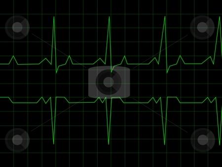 Normal Heart Rhythm stock photo, Normal Heart Rhythm electrocardiogram ECG graph with black background by Henrik Lehnerer
