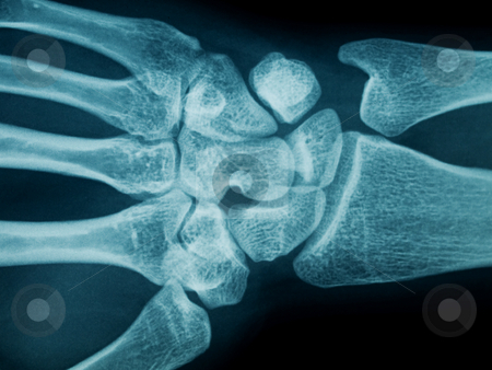 Hand wrist x-ray stock photo, Radiography of a middle aged woman hand and wrist by Laurent Dambies