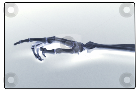 X-ray of human hand and forearm stock photo, X-ray like shot of human hand and forearm by James Barber