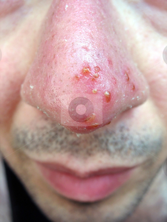 Nose Cold Sore stock photo, A medical condition closeup of the common coldsore virus herpes simplex on an infected victims nose. Triggers can be viral or from strong sun exposure. by Todd Arena