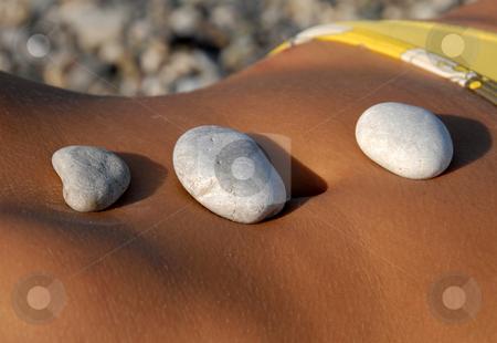 Rocks  on stomach stock photo, Three rocks on woman sunburned stomach closeup by Julija Sapic