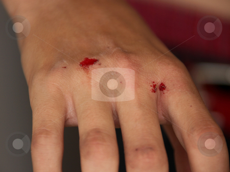 Injured Bleeding Hand stock photo, Injured Bleeding Hand of a Young Boy by Katrina Brown