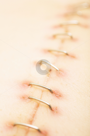 Scar #4 stock photo, Metal staples (satures) in a scar left from a Laparotomy/laparoscopy  by Sean Nel