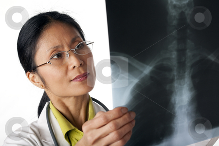 Doctor Looking at X-Ray stock photo, Asian female doctor looking at an x-ray of lungs. Horizontal shot. Isolated on white. by Edward Bock