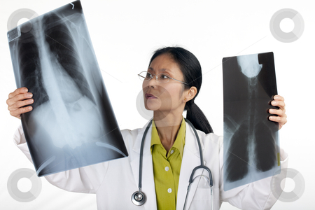 Doctor Looking at X-Rays stock photo, Asian female doctor reviews the results of a chest x-ray. Horizontal shot. Isolated on white. by Edward Bock