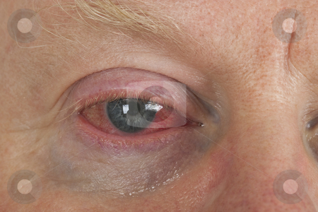 Bloodshot eye stock photo, Close up shot from  man's wrinkled tired irritated bloodshot eye. by Birgit Reitz-Hofmann