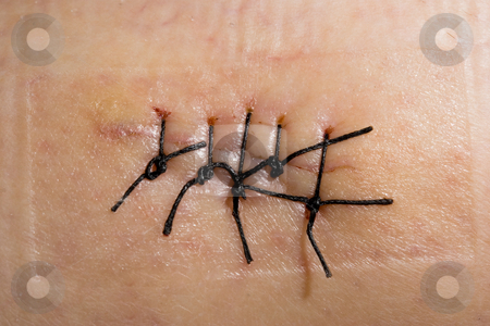 Scar stock photo, Close-up picture of a scar with stitch by ikostudio