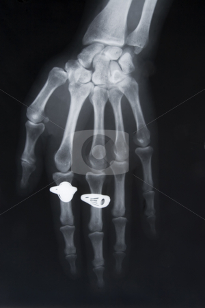 X-ray image of hand with two rings stock photo, Front view of x-ray image of hand with two rings by Victor Oancea