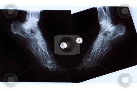 X-ray of Mature Woman Feet stock photo, X-ray of the mature woman feet, left and right sides view. by Rognar