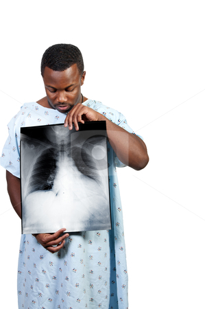 Black Man Patient stock photo, A black African American man patient holding an x-ray by Robert Byron