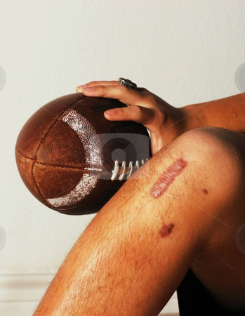 injury in football. #800901756 ACL football Injury