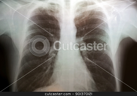 Torax X-Ray  stock photo, X-Ray Image of human torax with small emphysema by Paulo M.F. Pires