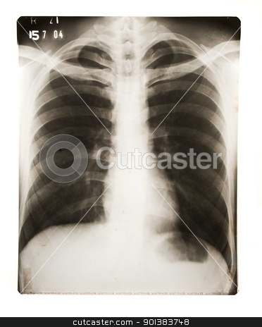 Chest X Ray stock photo, Chest X Ray by Haider Azim