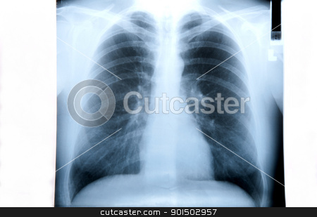 Lung X Ray Image stock photo, Smoker's lung X ray image isolated on white by Jenella