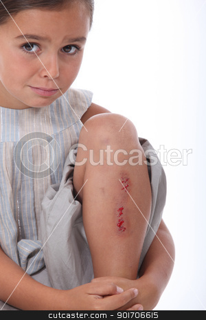 Girl with a grazed leg stock photo, Girl with a grazed leg by photography33