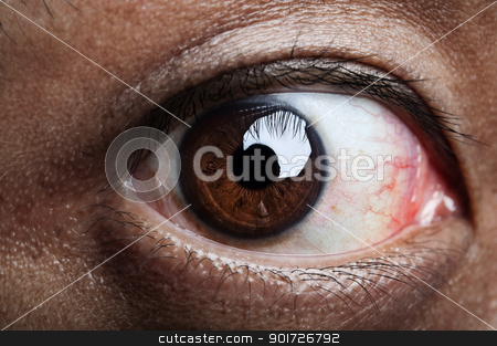 Ugly eye stock photo, Close up on human eye, looking into camera. by szefei