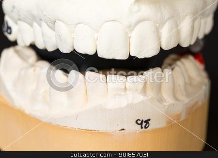 Mold of teeth taken for orthodontics stock photo, Mould of teeth in plaster taken to prepare brace for orthodontics by Steven Heap